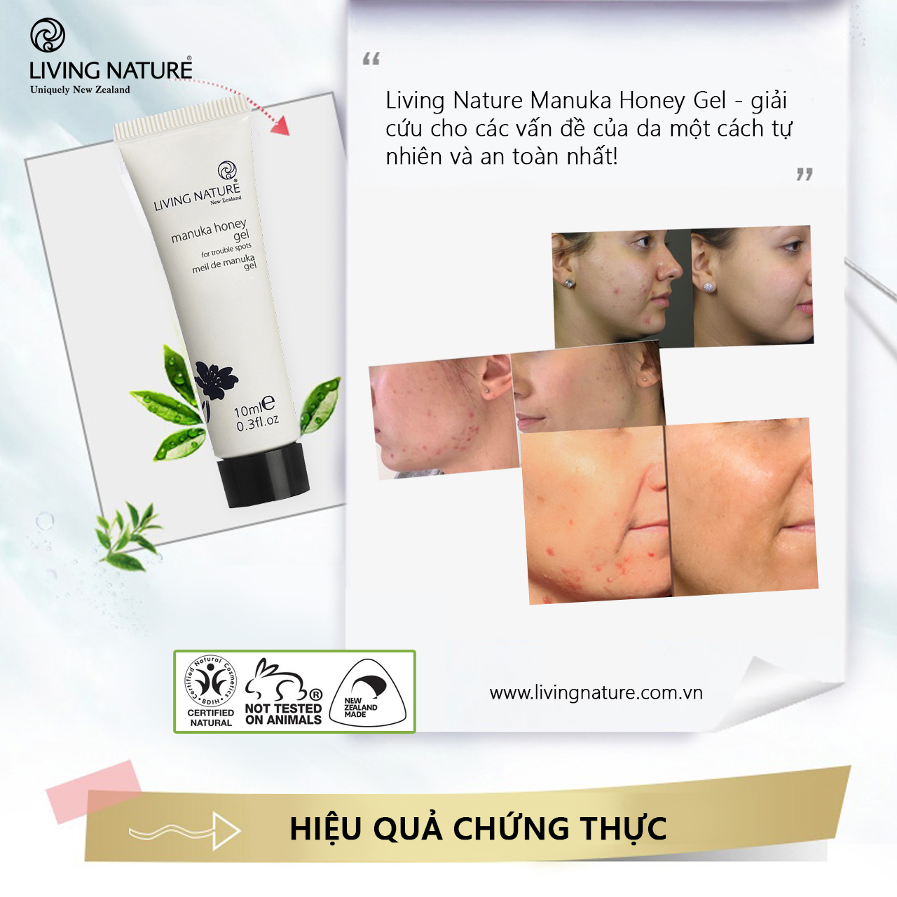 Gel trị mụn Living Nature Manuka Honey Gel 10ml - 1