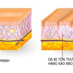 Hàng rào bảo vệ da bị tổn thương