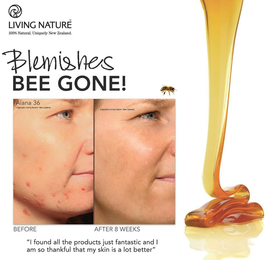 mật ong Manuka Honey 2