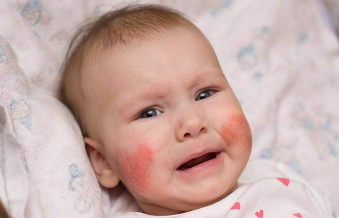 Bé bị chàm sữa mẹ kiêng ăn gì giúp con nhanh khỏi bệnh?